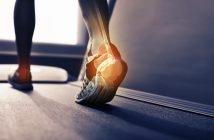Burning sensation on feet during running