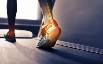 Burning sensation on feet during running